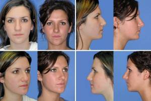 rhinoplasty in St Clair Shores Michigan