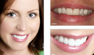 cosmetic-dentistry-fort-worth