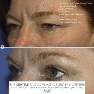 Eyelid Lift Seattle WA