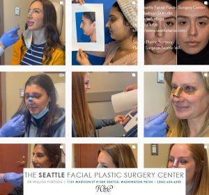 facial plastic surgery in Seattle WA