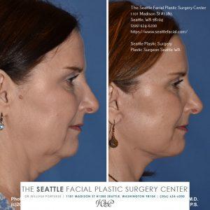 facial plastic surgery seattle